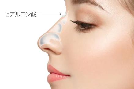 鼻手術イメージ画像2