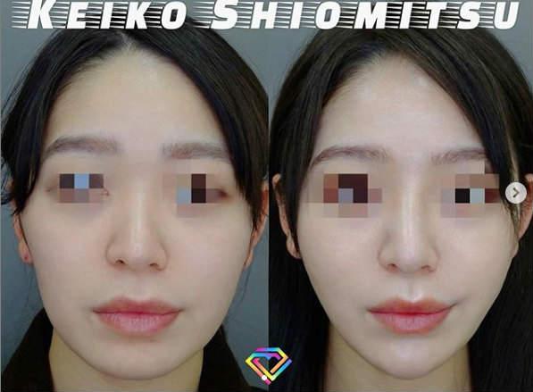 鼻ヒアルロン酸症例画像