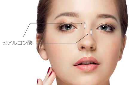 鼻手術イメージ画像1